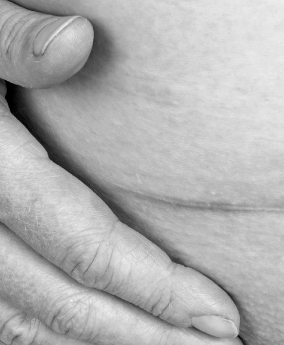 punto infectado cesarea